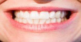 Mejores Blanqueadores Dentales. Contraindicaciones y modelos Caseros